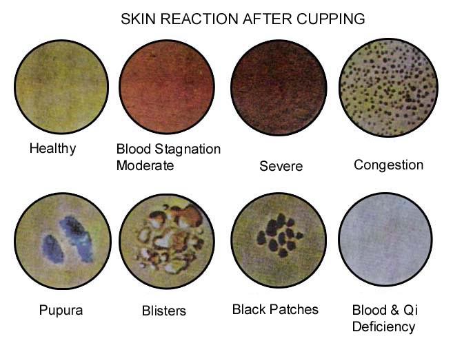 skin-reaction after cupping