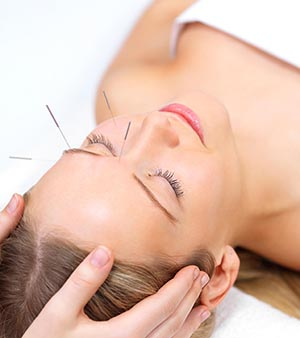 Facial Acupuncture Santa Monica Los Angeles